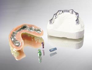 Steggeschiebetechnik auf Implantaten