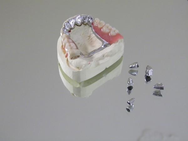 Galvanokombi nach Verklebung im Mund